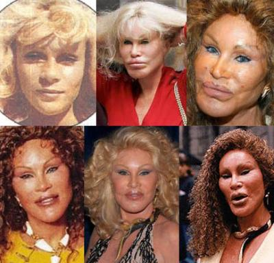 jocelyn wildenstein 2010. Jocelyn