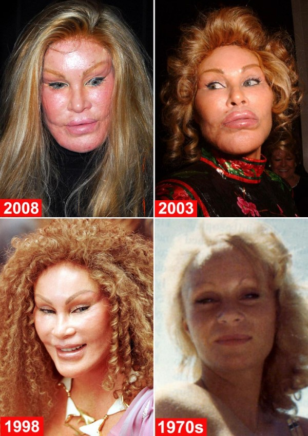 third image of Cat Woman Plastic Surgery Gone Wrong with jocelyn wildenstein